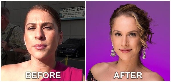 Ana Kasparian before and after Nose Job image