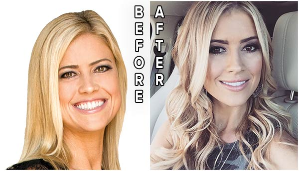 Christina el Moussa before and after lips surgery