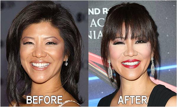 Julie Chen's before after image of eye, nose and plastic surgery